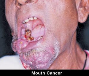 kanker-mulut1